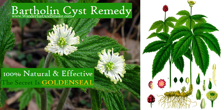 ALL NATURAL and EFFECTIVE Bartholin Cyst Remedy – Wanderlust